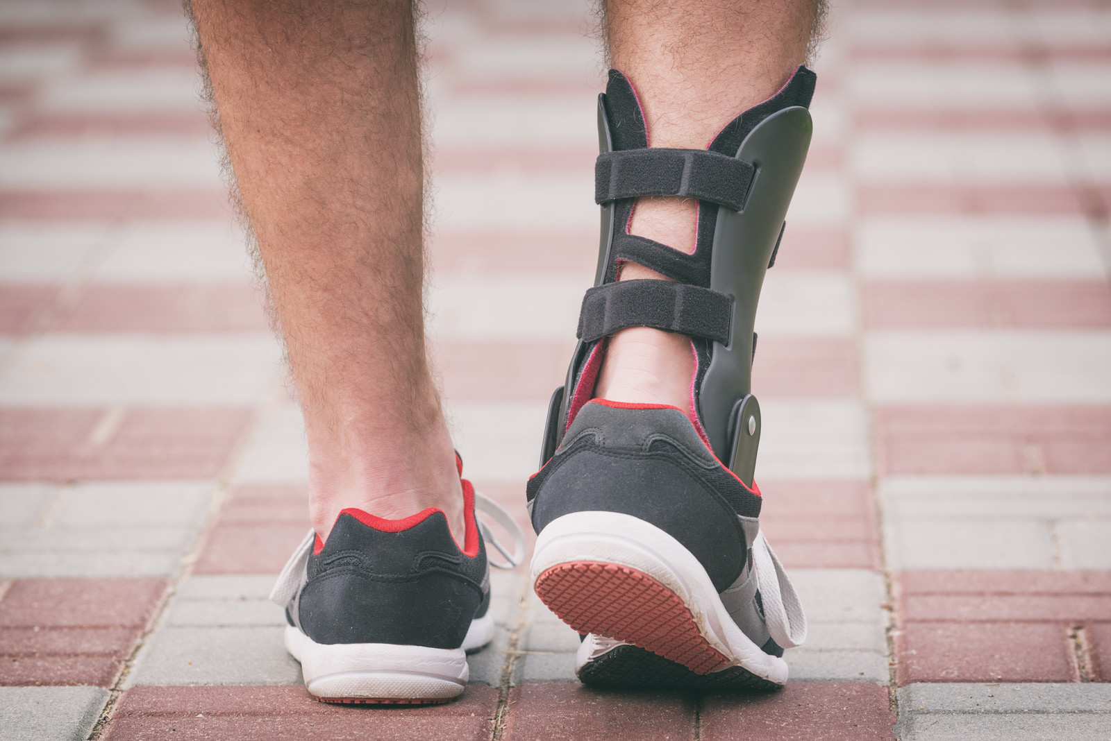 Get Support: The Importance of Good Bracing